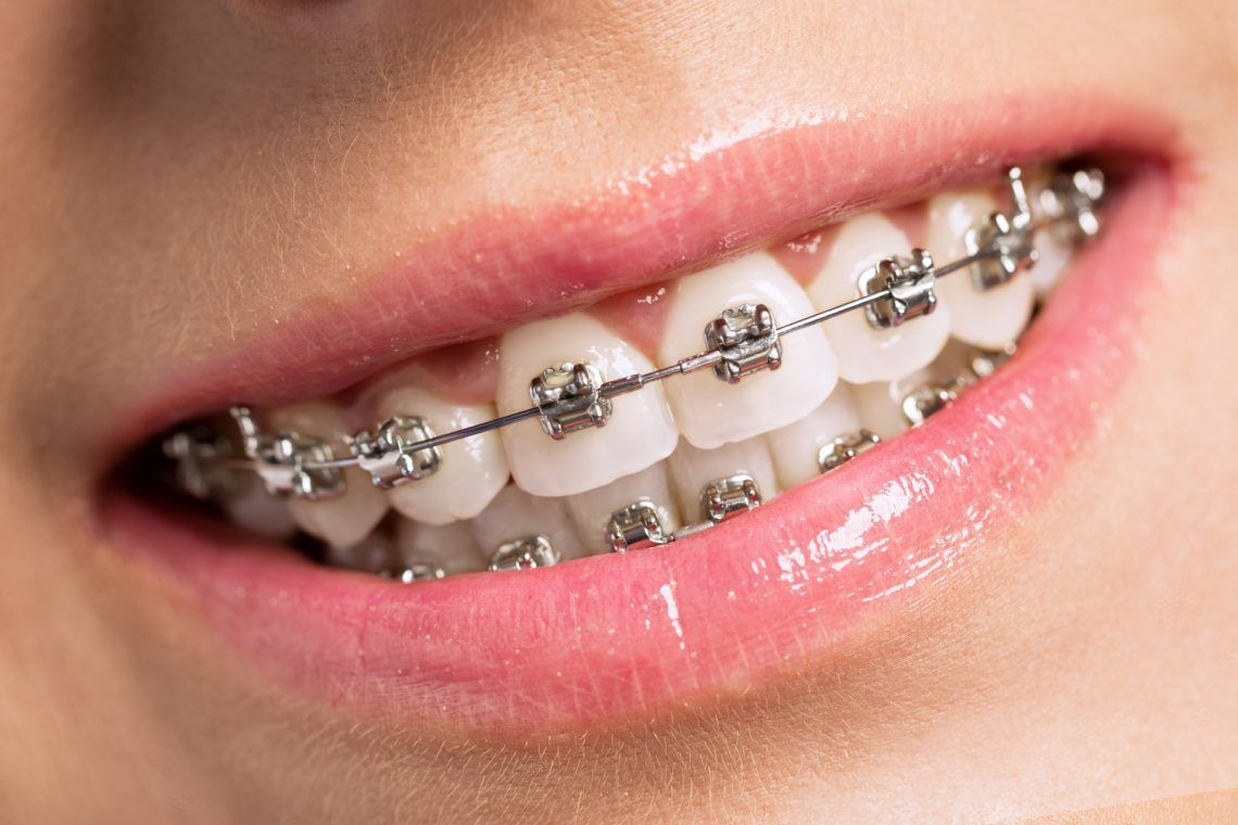 metal-braces-dentist london