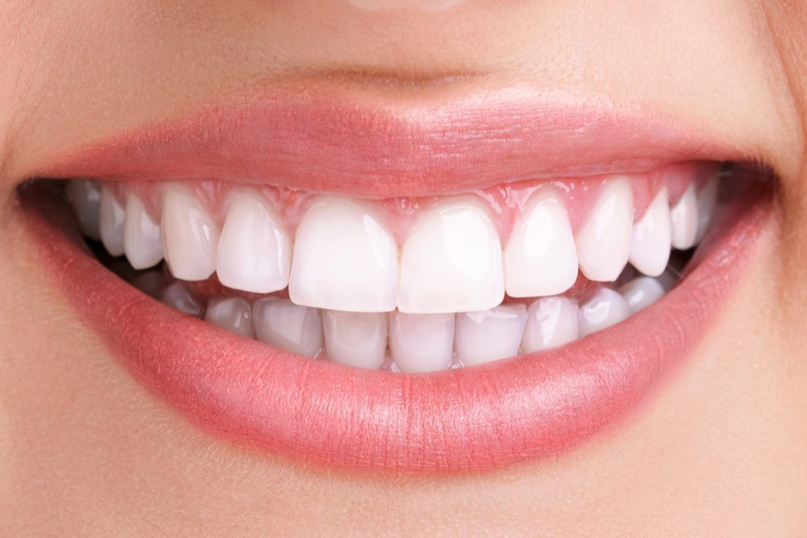 teeth-whitening-after-in-dentist-london